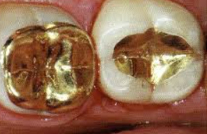 Gold Inlays and Onlays